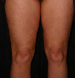 dopo-gambe