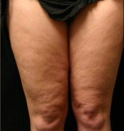 prima-gambe