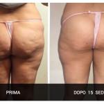 Cellulite terzo stadio