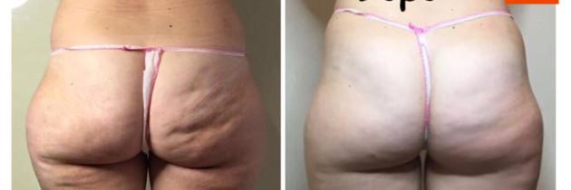Cellulite e Rimodellamento
